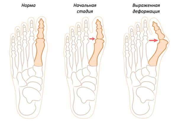 Специалист по удалению суставной мозоли в алматы название болезней суставов ног